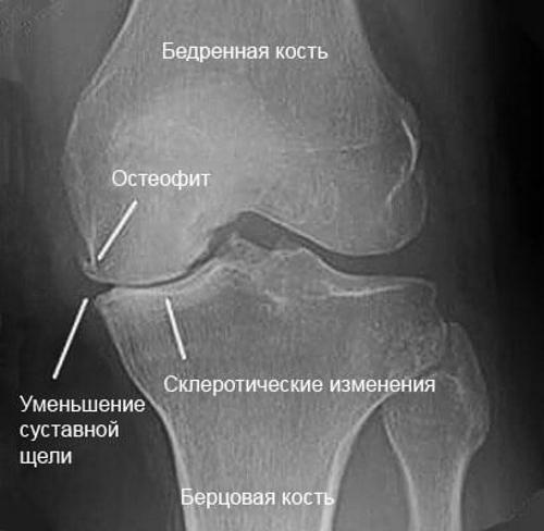 Остеофіти колінного суглоба (крайові): що це таке, причини, лікування