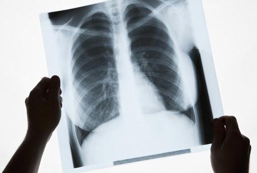 Рубці в легких при пневмонії