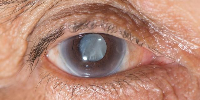 Болять очі від світла: причини чому виникає біль від яскравого сонячного світла
