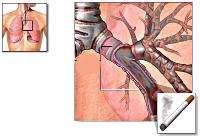 Бронхіт курця - причини, симптоми, і лікування