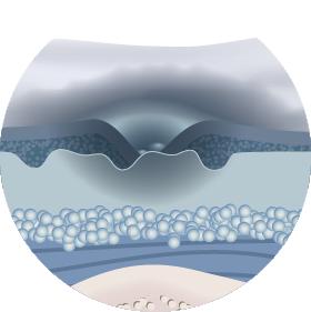 Глибокі пролежні: лікування і перев'язка в домашніх умовах