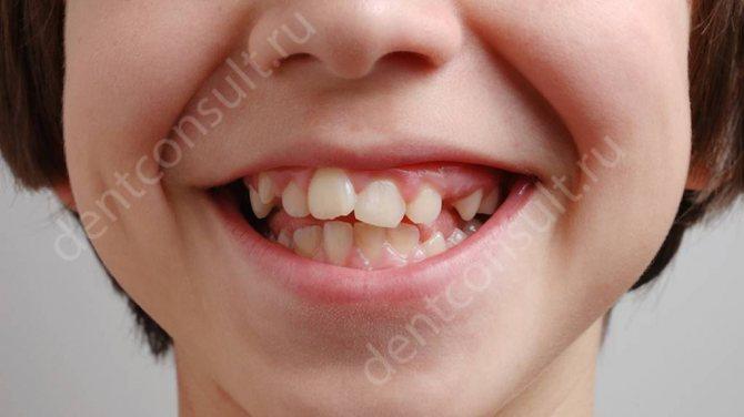 дефекти зубощелепної системи