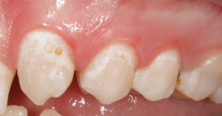 демінералізація зубів