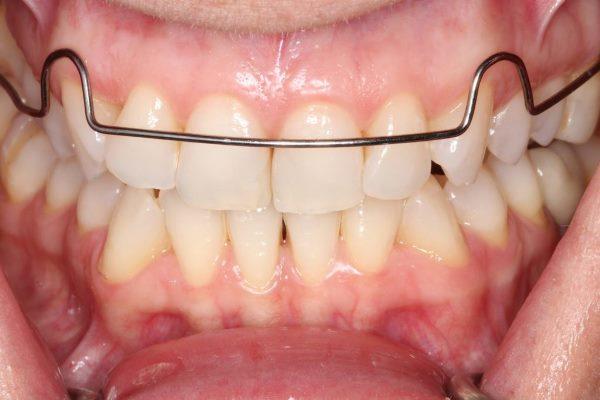 Депрограмматор Койсо в стоматології