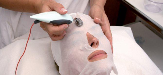 Дезінкрустація шкіри обличчя