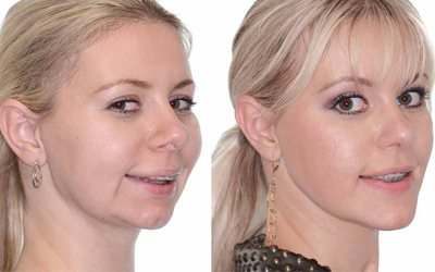 Дистальний прикус - Стоматологія Лінія Посмішки