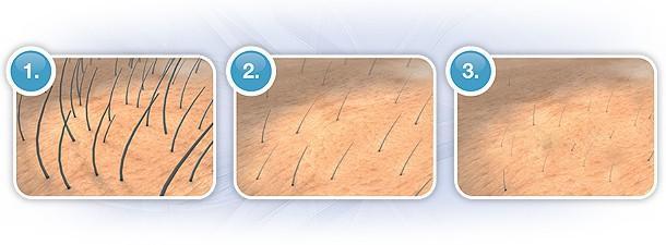 Довжина волосся при епіляції