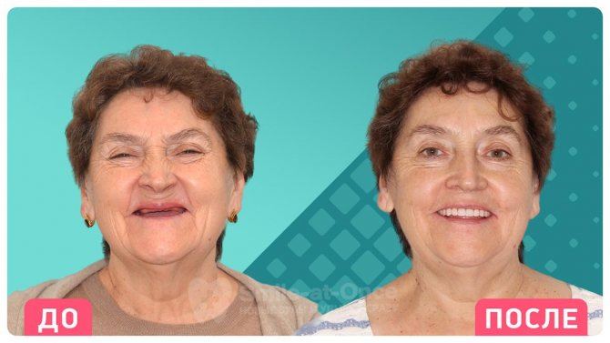 До і після імплантації з установкою протеза відразу. Фото: Smile-at-Once