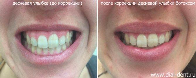 до і після корекції ясенний посмішки ботоксом
