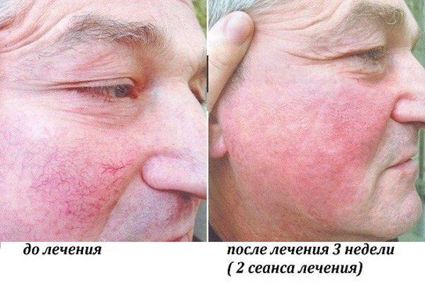 До і після лікування купероза методом фототерапії