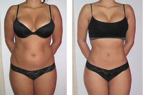 до і після лимфодренажного масажу