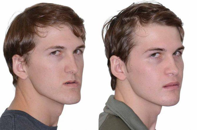 до і після остеотомії