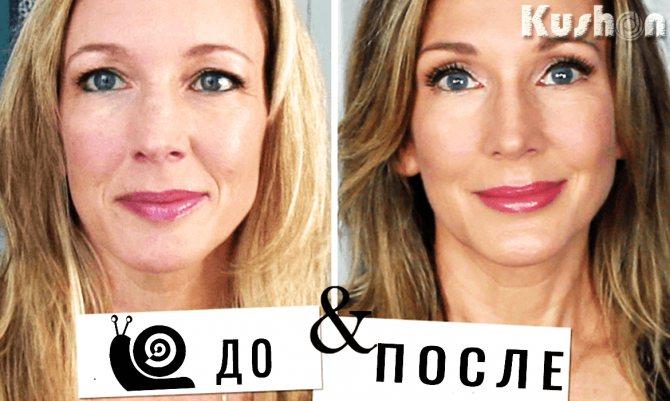 до і після равликового крему