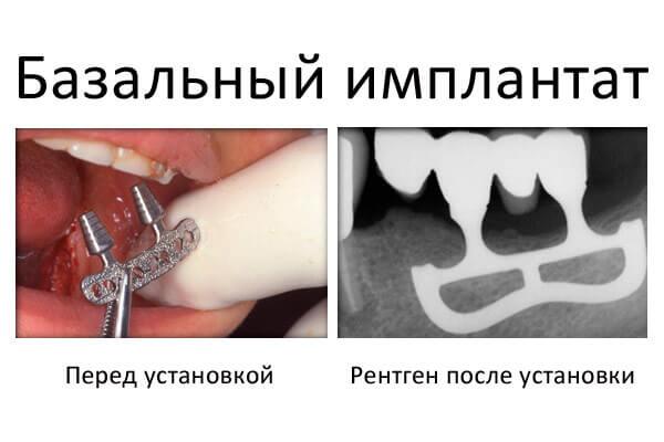 до і після установки