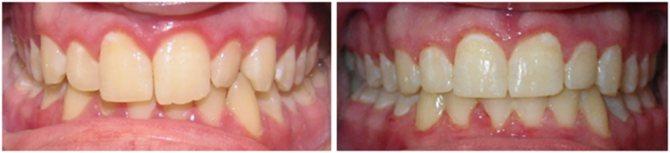 До і після зубних скоб
