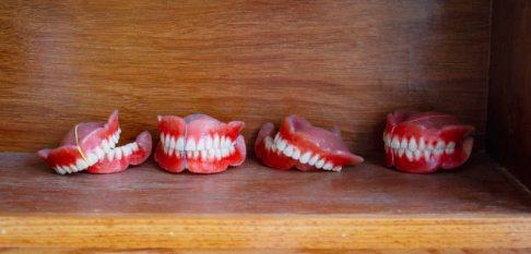 чи довго звикати до знімним зубних протезів?