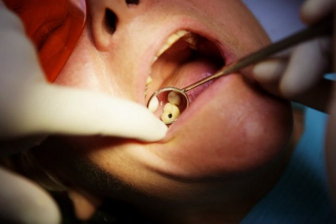 Дірка в зубі