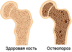 Дієта при остеопорозі: у жінок і чоловіків, кальцієва, Уокера, приклад меню