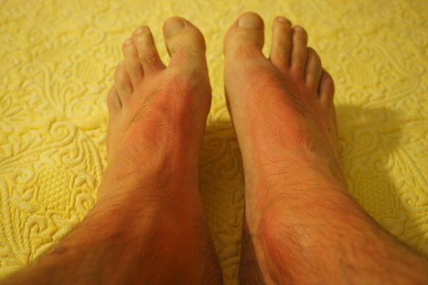 Дієта при алергії - специфіка для алергіків