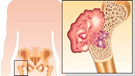 Екзостоз - доброякісна пухлина на кістки