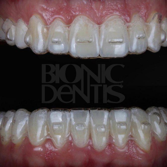 елайнери вирівнювання зубів