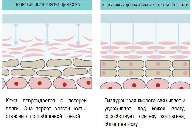 Ендоскопічний ліфтинг чола і брів. Фото до і після, як виконується, наслідки, відгуки