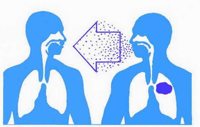 ентеровірусний везикулярний стоматит причини патології та шляхи зараження