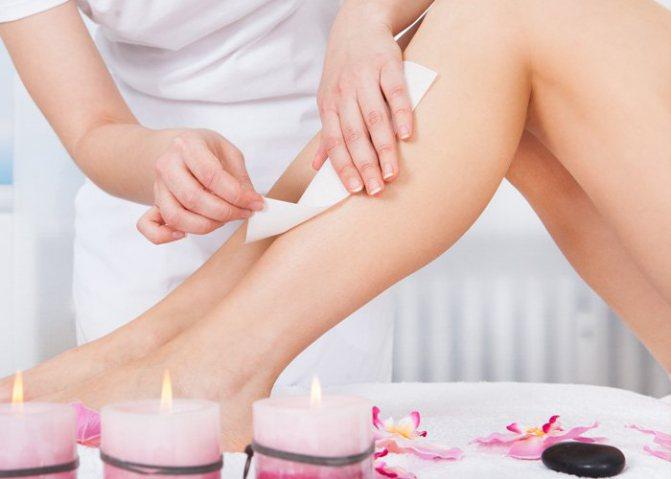 епіляція волосся на ногах