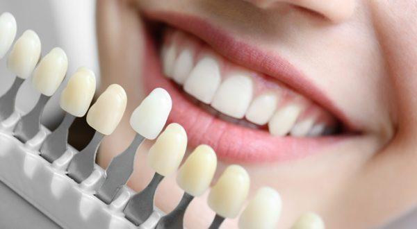 Ерозія емалі зубів етіологія