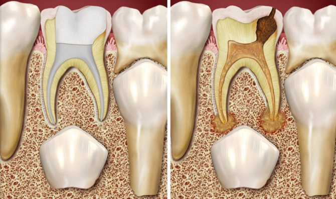 Якщо не лікувати тимчасові зуби, вони можуть стати причиною пошкодження постійних