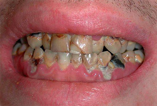 Якщо проблеми з зубами занадто серйозні, то полоскання можуть і не допомогти зовсім ...