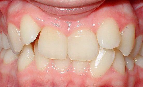 Якщо дитина занадто рано втратить молочних зубів, то у нього може сформуватися неправильний прикус.
