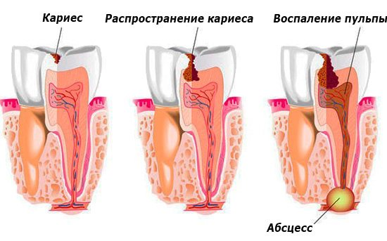 Якщо вчасно не звернутися до стоматолога, то в подальшому цілком можна позбутися зуба взагалі.