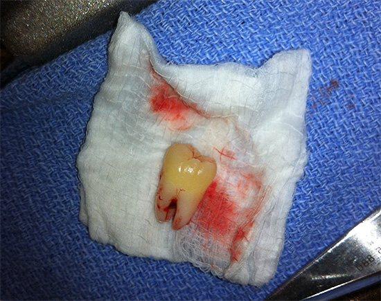 Якщо вчасно видалити дратівливий ясна зуб хірургічним шляхом, то це дозволить уникнути в подальшому багатьох проблем.
