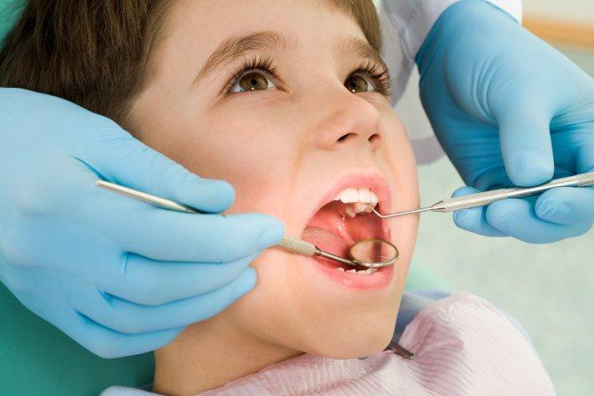 Чи є нерви в молочних зубах: видаляють чи нервові закінчення у дітей?