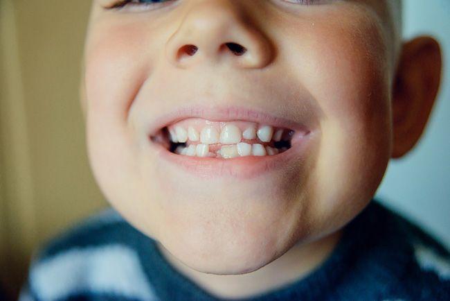 Чи є в молочних зубах нерви