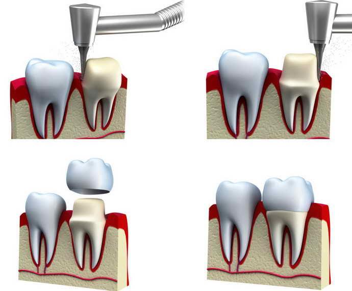Етап установки зубної коронки