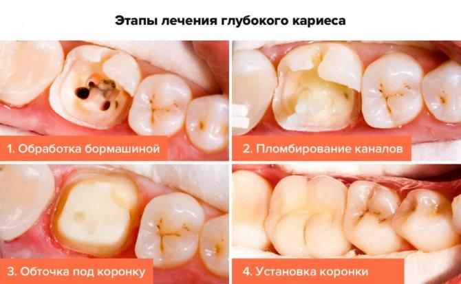 Етапи лікування глибокого карієсу