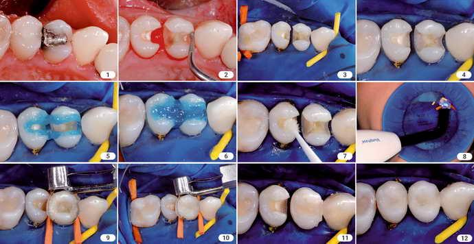 етапи пломбування зубів