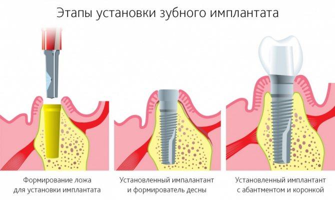 етапи протезування
