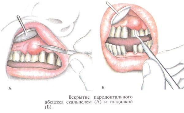 Етапи проведення операції. Як ріжуть ясна в стоматології
