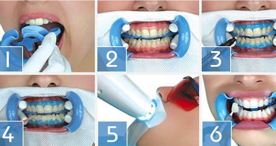 Етапи проведення процедури хімічного відбілювання зубів