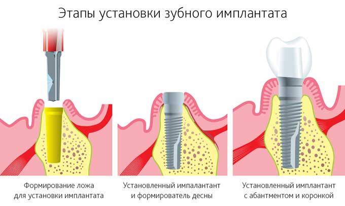 етапи установки зубних імплантів
