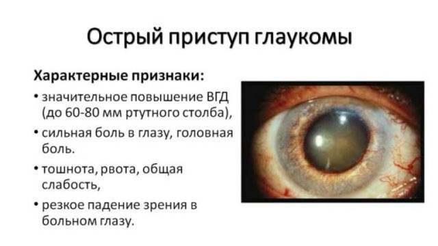 Гострий приступ глаукоми: симптоми, невідкладна допомога
