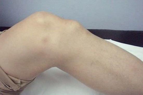 Хвороба Шляттера колінного суглоба: причини, симптоми, лікування, у підлітка