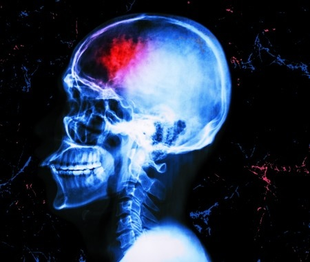 Смерть від інсульту: зовнішні ознаки і боляче помирати