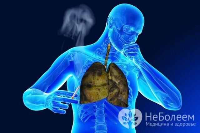 Чим відрізняється запалення легенів від пневмонії
