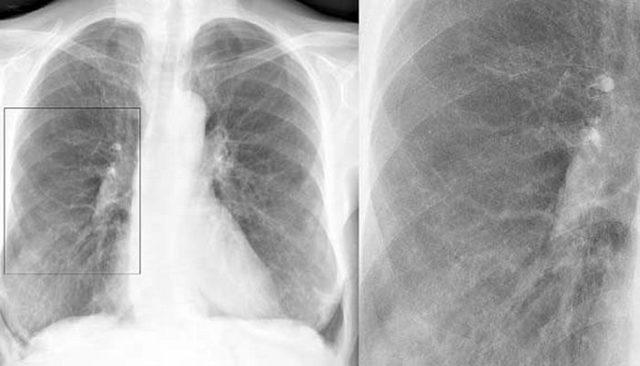 Видно чи бронхіт на рентгені легень