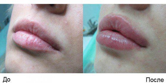 Філер Реплері для контурної пластики і збільшення обсягу губ