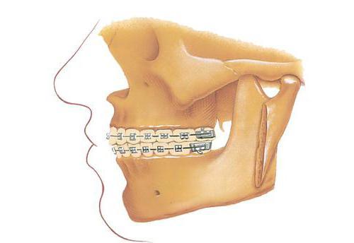 форма альвеолярного відростка